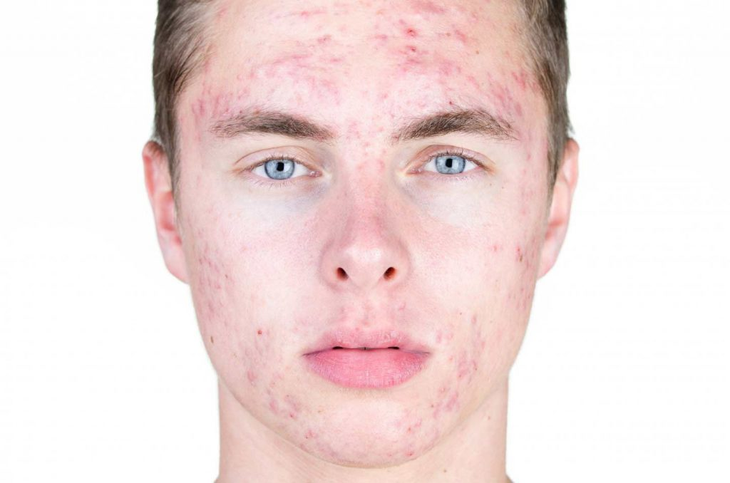 Image of the face of a man suffering from acne