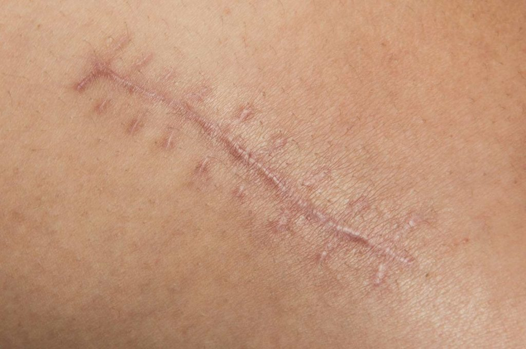 Image of skin with surgical intervention scars