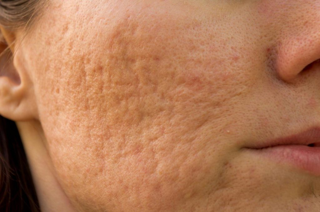 image of a face of a woman with scars from acne