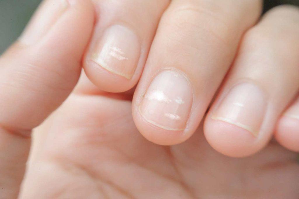 Image of sick nails