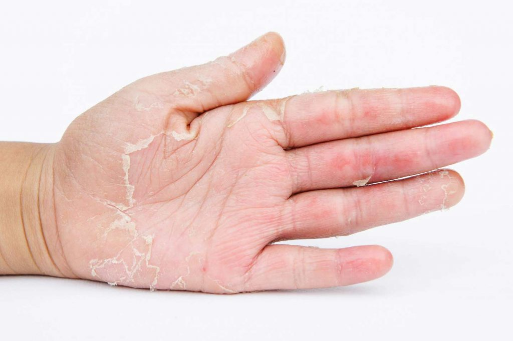Image of a hand with eczema