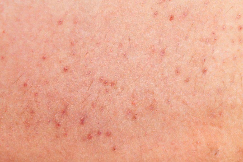 Skin with foliculitis