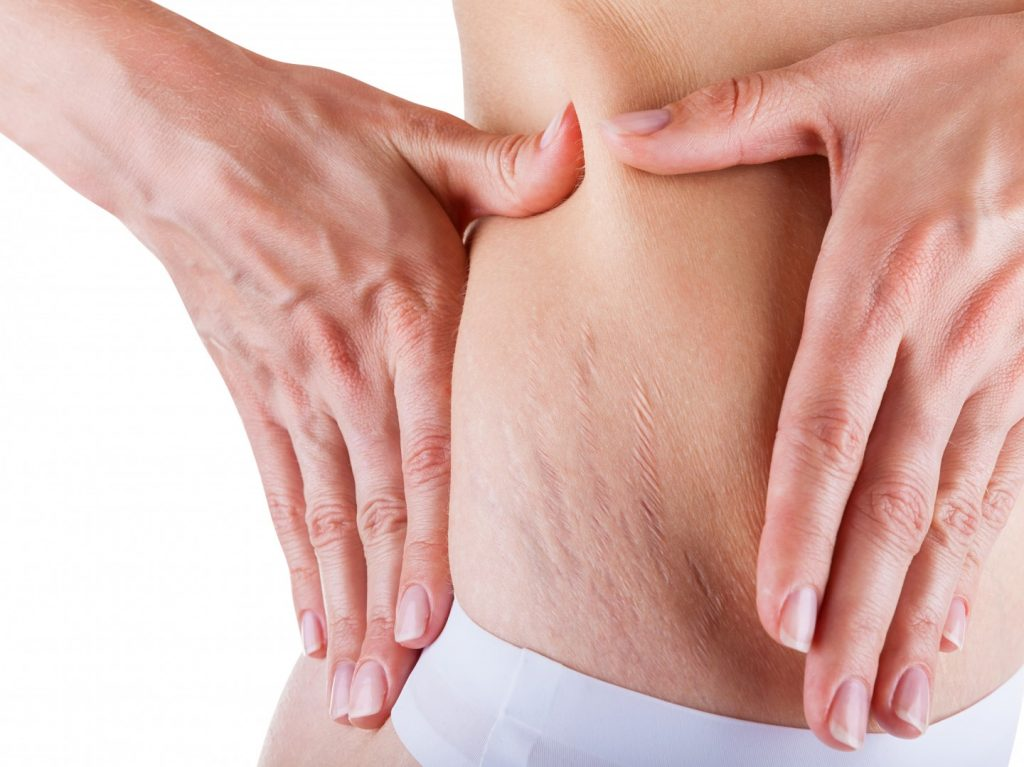 Image of skin with stretch marks