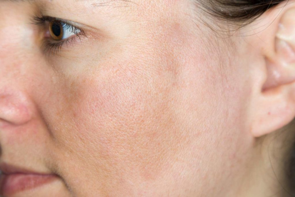 Image of a woman suffering from melasma