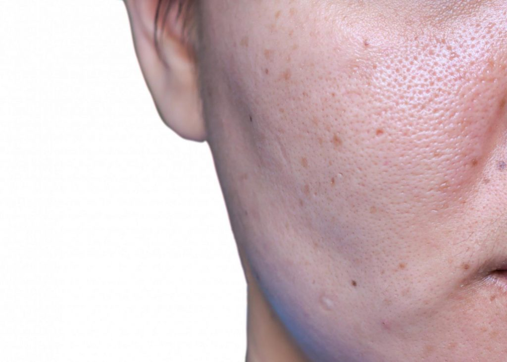 Image of a human face with visible skin pores