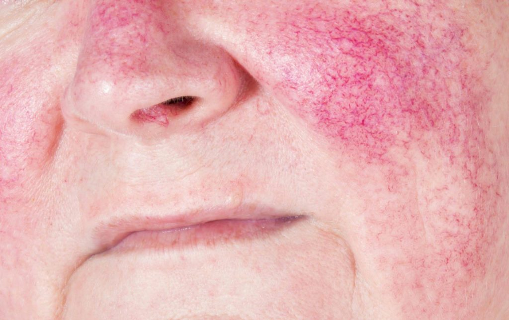 image of a face with expanded capillaries