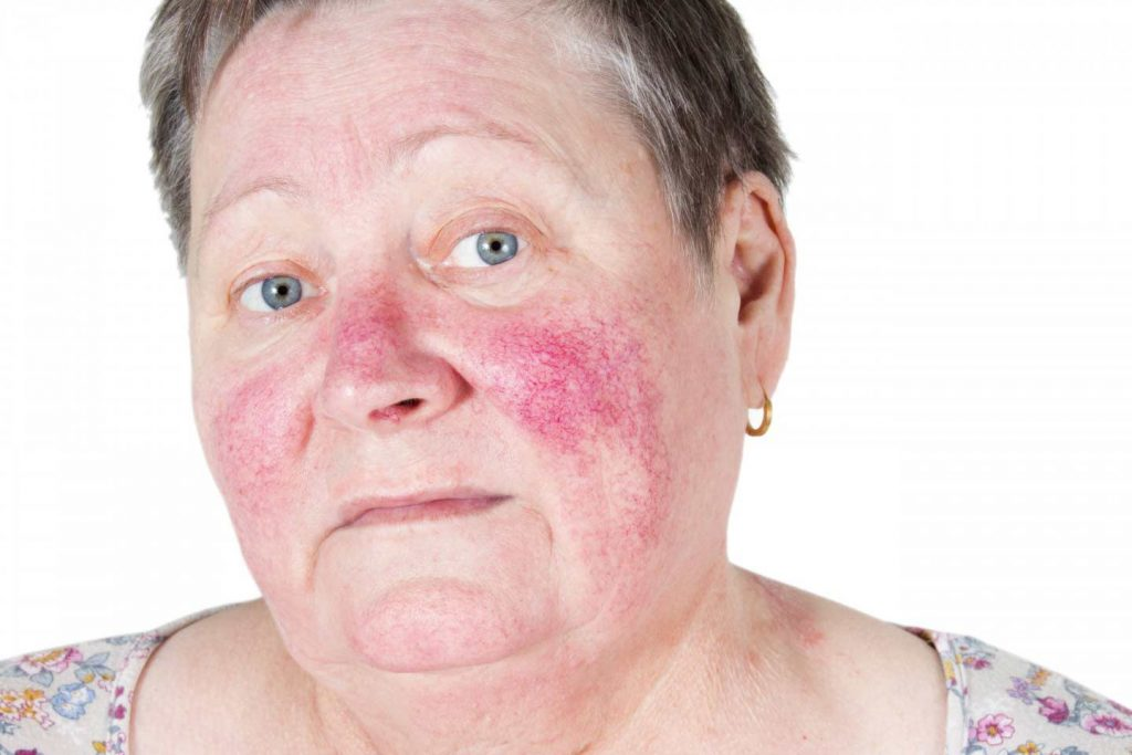Image of a woman suffering from rosacea
