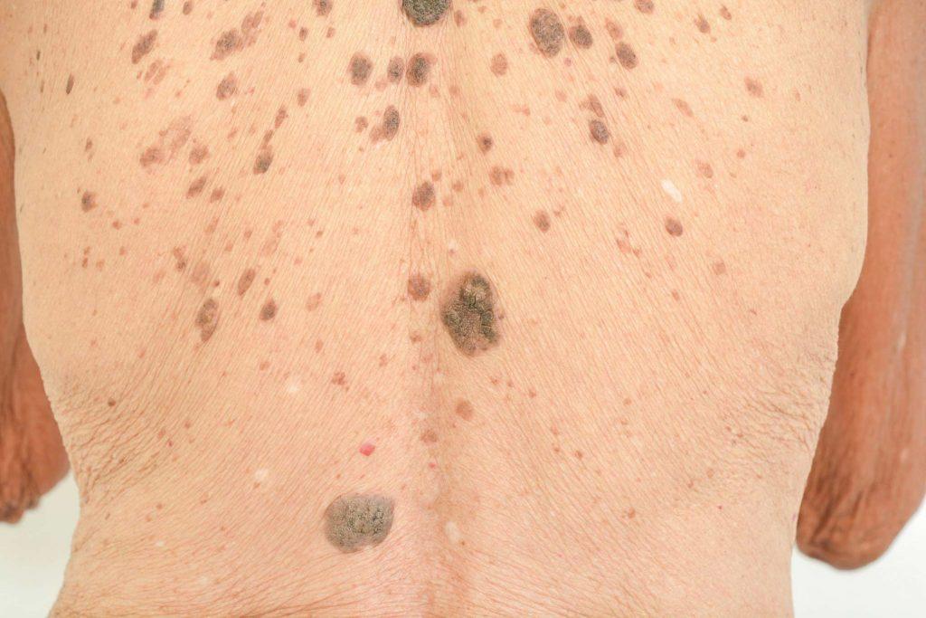 Skin with sebaceous warts
